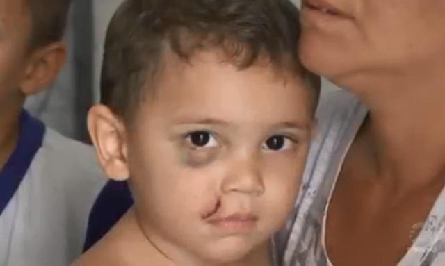 Veja como está Bernardo, criança que sofreu um coice de cavalo em Patos
