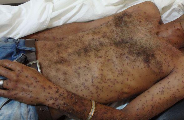 Homem é atacado por enxame de abelhas e sofre mais de 200 ferroadas, em Conceição