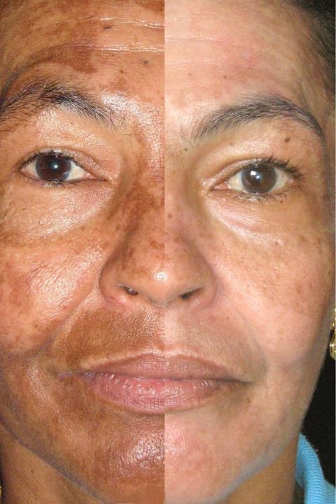 Peeling de Oli Ola em cápsulas – Mesmos benefícios dos peelings químicos e físicos na pele – A revolução em nutricosméticos
